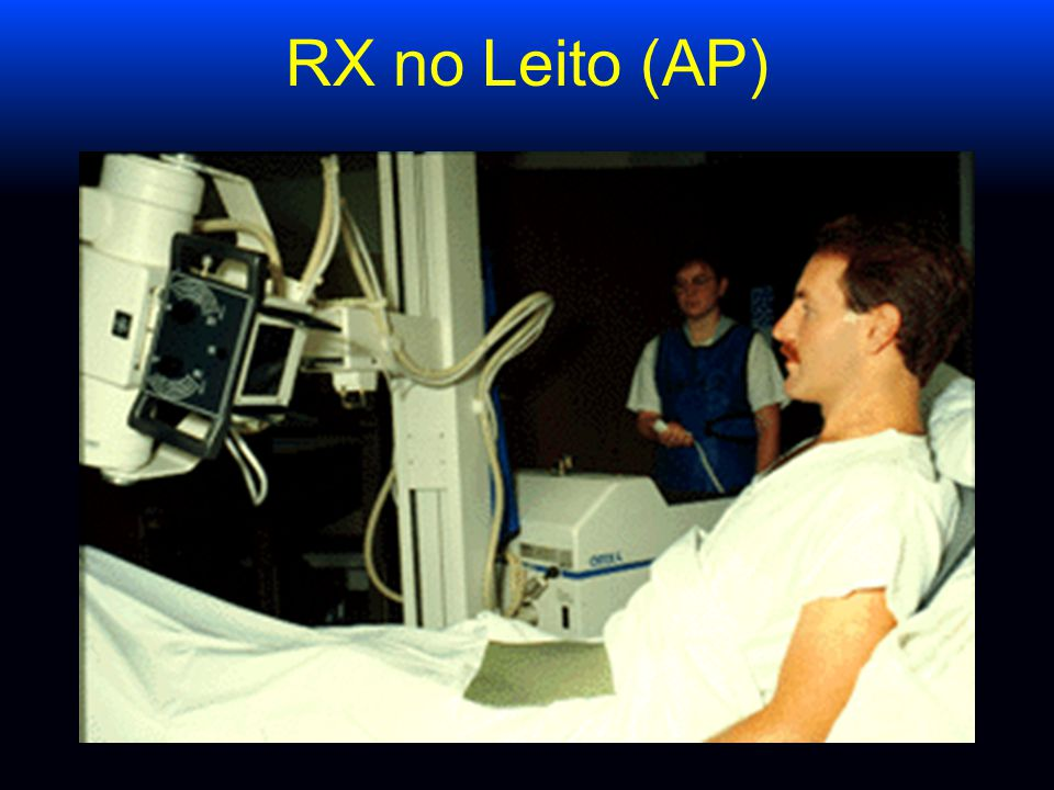 Deve-se fazer RX de tórax após passagem de cateter venoso central ? McGee, NEJM 2003