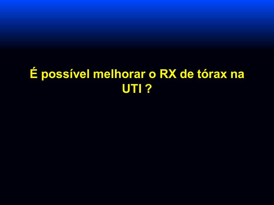 É possível melhorar o RX de tórax na UTI ?
