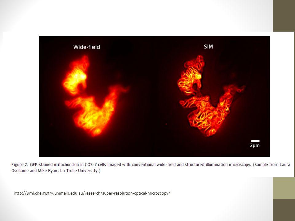 http://uml.chemistry.unimelb.edu.au/research/super-resolution-optical-microscopy/