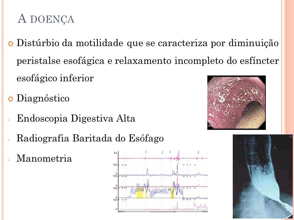 Distúrbio da motilidade que se caracteriza por diminuição peristalse esofágica e relaxamento incompleto do esfíncter esofágico inferior Diagnóstico - Endoscopia Digestiva Alta - Radiografia Baritada do Esófago - Manometria A DOENÇA