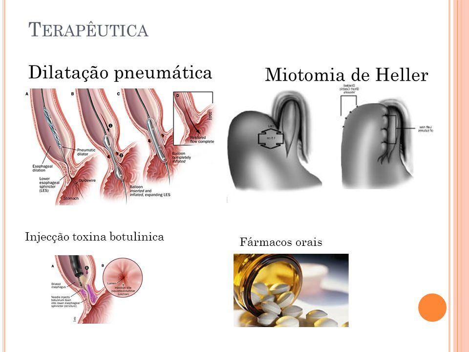 Dilatação pneumática T ERAPÊUTICA Fármacos orais Miotomia de Heller Injecção toxina botulinica