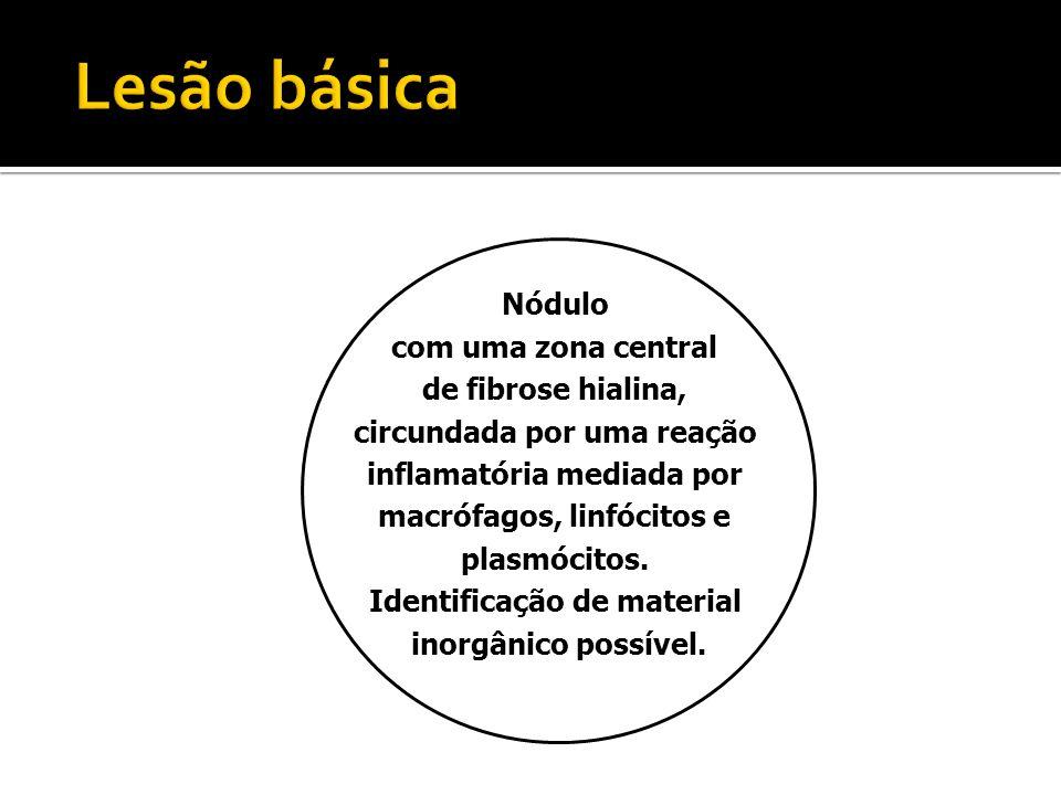 Nódulo com uma zona central de fibrose hialina, circundada por uma reação inflamatória mediada por macrófagos, linfócitos e plasmócitos. Identificação