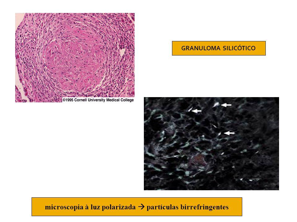 GRANULOMA SILICÓTICO microscopia à luz polarizada  partículas birrefringentes