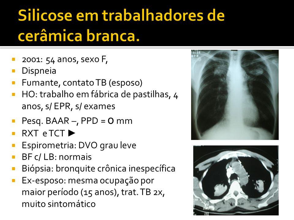  2001: 54 anos, sexo F,  Dispneia  Fumante, contato TB (esposo)  HO: trabalho em fábrica de pastilhas, 4 anos, s/ EPR, s/ exames  Pesq. BAAR –, P
