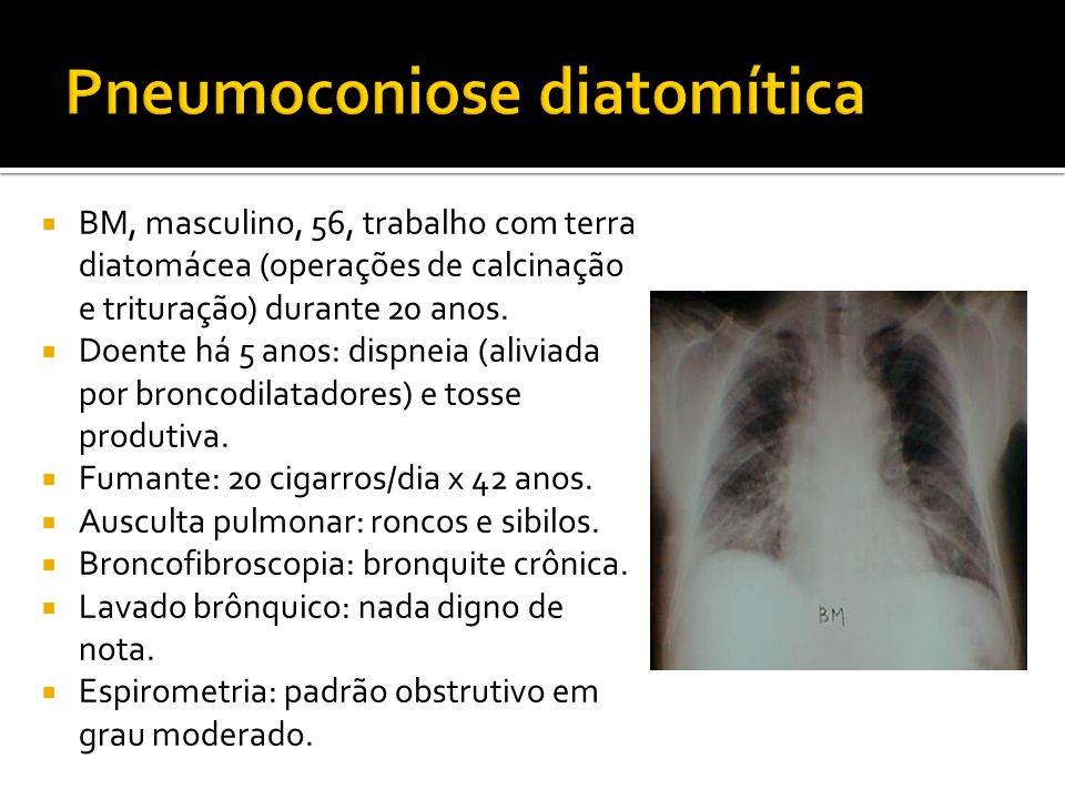  BM, masculino, 56, trabalho com terra diatomácea (operações de calcinação e trituração) durante 20 anos.  Doente há 5 anos: dispneia (aliviada por