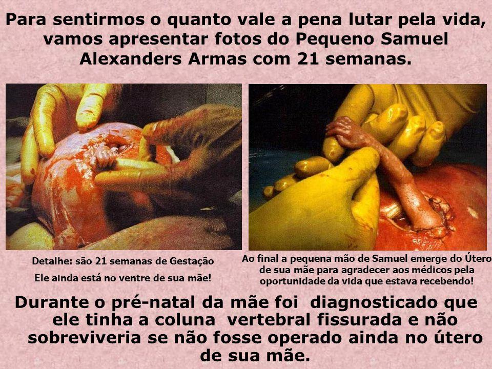 Quem é o Nascituro? A redenção do homem e salvação da humanidade começa na concepção de Jesus, onde o verbo se fez carne no ventre de Maria (Mt. 1, 18