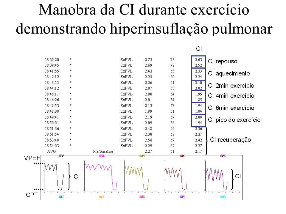 Manobra da CI durante exercício demonstrando hiperinsuflação pulmonar