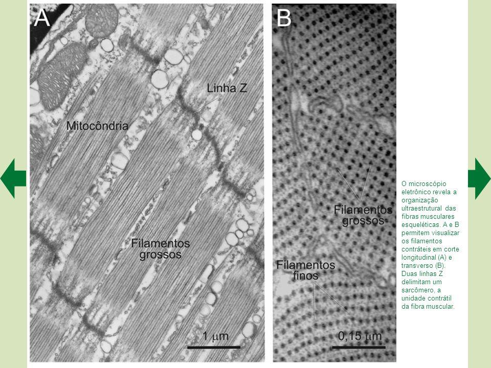 Microestrutura das fibras musculares. À esquerda, um músculo estriado esquelético tomado como exemplo. No meio, um feixe de fibras musculares com as f