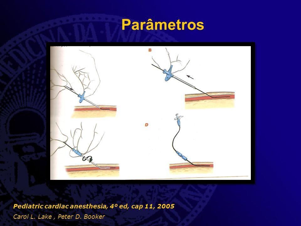 Parâmetros  Monitorização de oxigenação - Oximetria de pulso - Eletrodos de oxigenação transcutânea - Optode sensors Pediatric cardiac anesthesia, 4º ed, cap 11, 2005 Carol L.