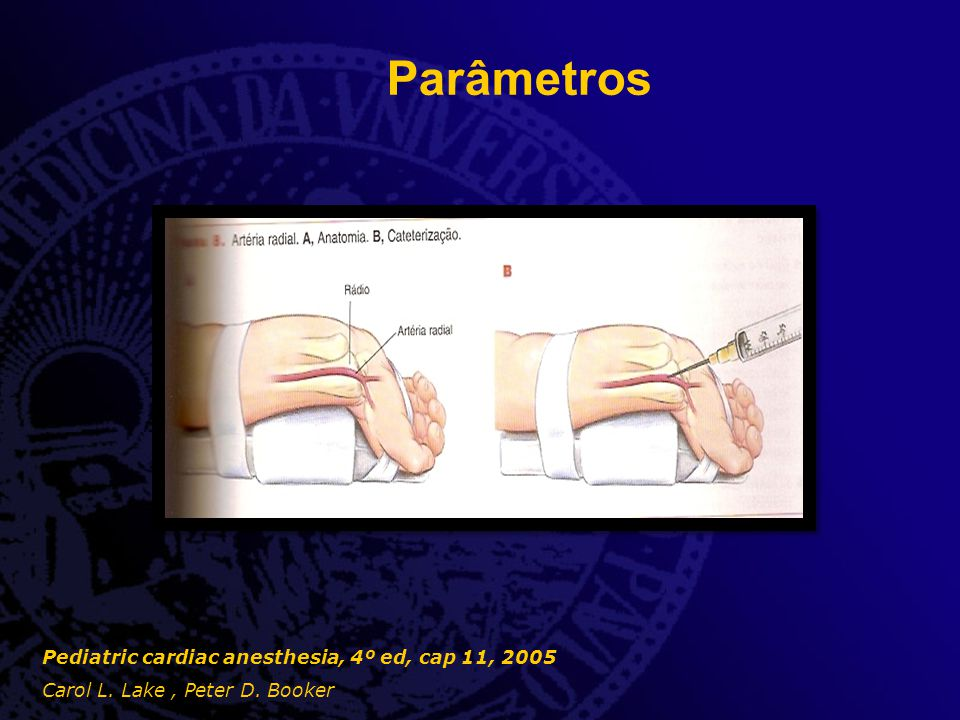 Parâmetros  Acesso venoso central - Relevância - Sitio de punção - Técnica cirúrgica - Complicações Pediatric cardiac anesthesia, 4º ed, cap 11, 2005 Carol L.