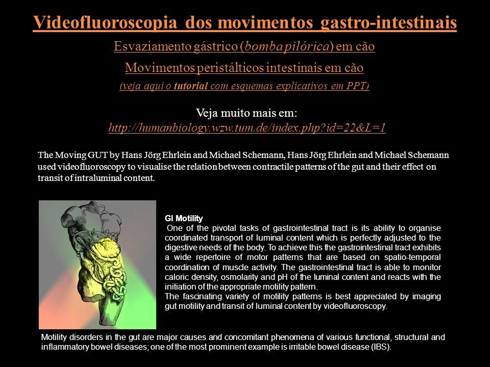 Movimentos do intestino delgado: peristálticos (ou propulsivos) e de mistura (segmentares) extraído, enquanto disponível, de http://medweb.bham.ac.uk/