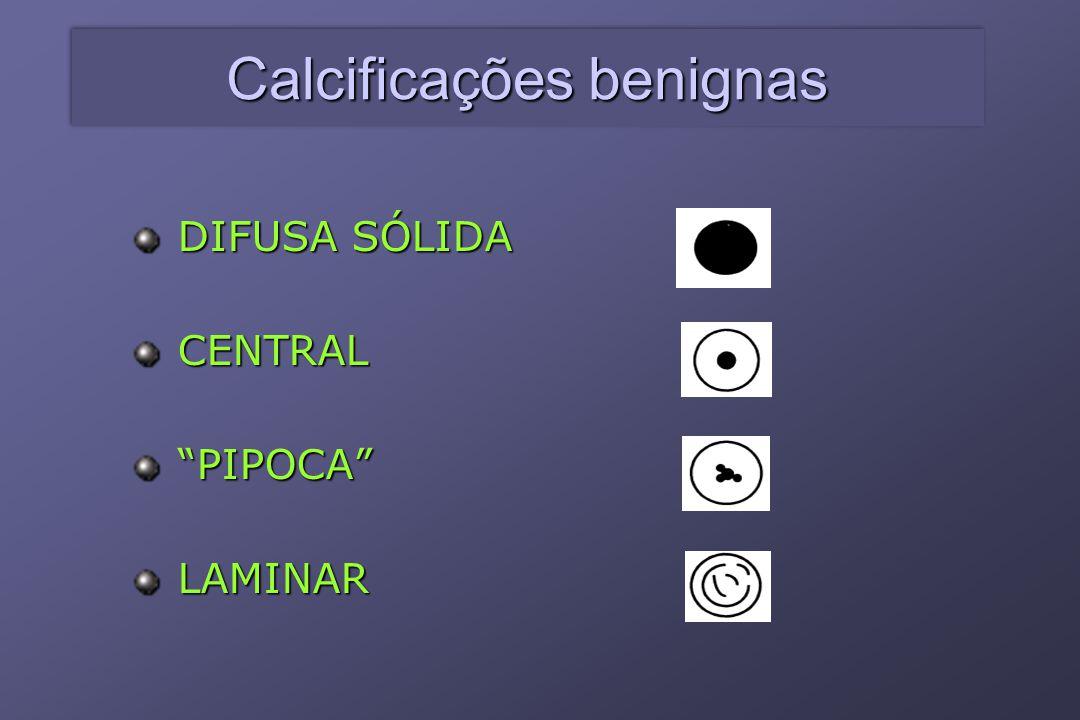 """DIFUSA SÓLIDA CENTRAL """"PIPOCA"""" LAMINAR Calcificações benignas"""