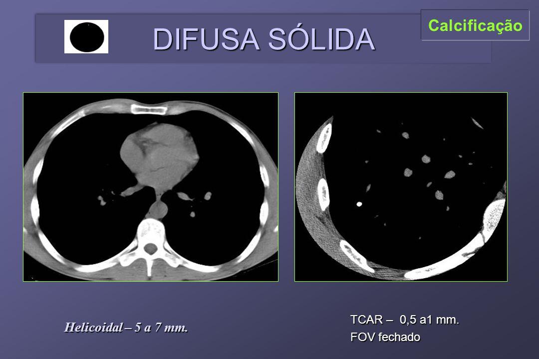 TCAR – 0,5 a1 mm. FOV fechado Helicoidal – 5 a 7 mm. DIFUSA SÓLIDA Calcificação
