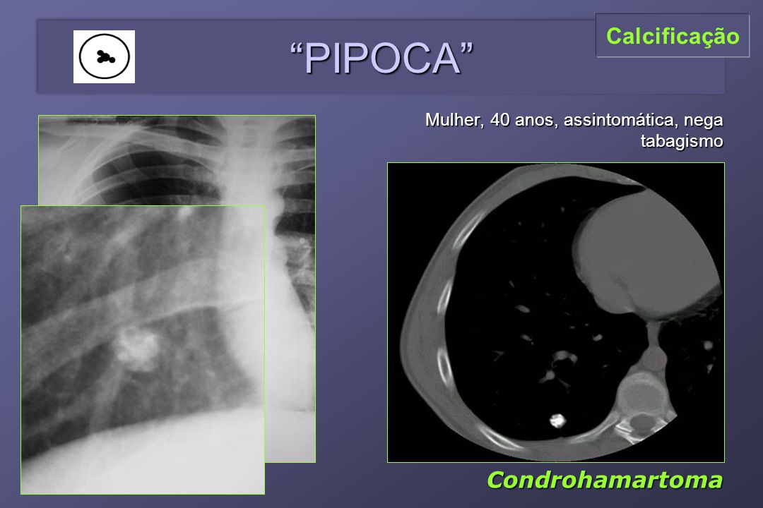 PIPOCA Mulher, 40 anos, assintomática, nega tabagismo Condrohamartoma Calcificação