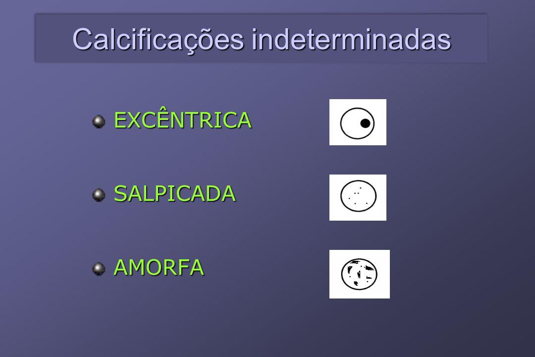 Calcificações indeterminadas EXCÊNTRICASALPICADAAMORFA