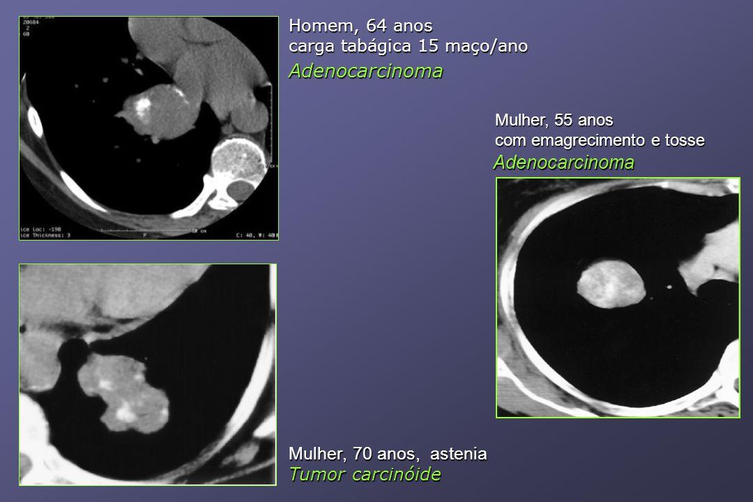 Homem, 64 anos carga tabágica 15 maço/ano Adenocarcinoma Mulher, 70 anos, astenia Tumor carcinóide Mulher, 55 anos com emagrecimento e tosse Adenocarcinoma