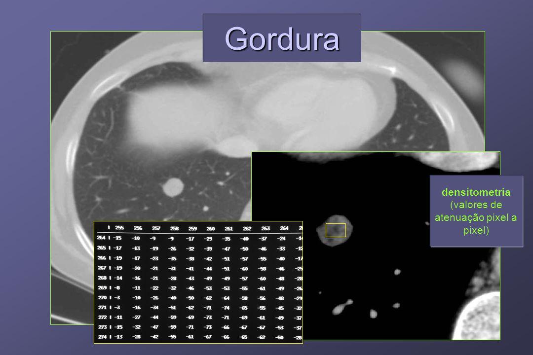 densitometria (valores de atenuação pixel a pixel) GorduraGordura