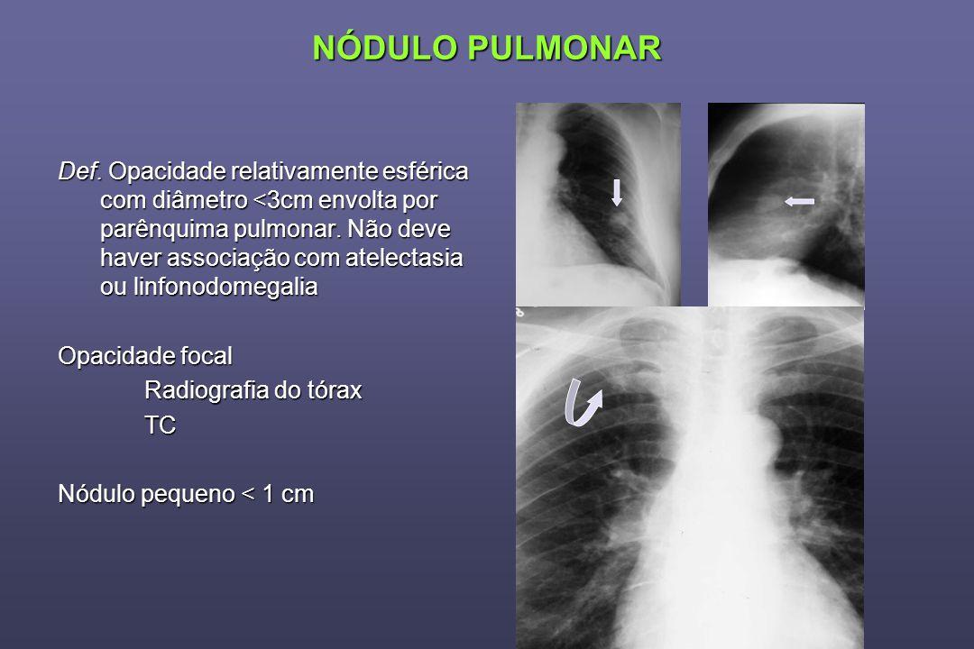 NÓDULO PULMONAR Def. Opacidade relativamente esférica com diâmetro <3cm envolta por parênquima pulmonar. Não deve haver associação com atelectasia ou