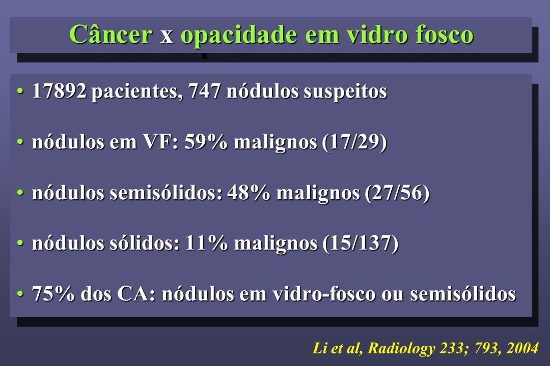 17892 pacientes, 747 nódulos suspeitos17892 pacientes, 747 nódulos suspeitos nódulos em VF: 59% malignos (17/29)nódulos em VF: 59% malignos (17/29) nódulos semisólidos: 48% malignos (27/56)nódulos semisólidos: 48% malignos (27/56) nódulos sólidos: 11% malignos (15/137)nódulos sólidos: 11% malignos (15/137) 75% dos CA: nódulos em vidro-fosco ou semisólidos75% dos CA: nódulos em vidro-fosco ou semisólidos 17892 pacientes, 747 nódulos suspeitos17892 pacientes, 747 nódulos suspeitos nódulos em VF: 59% malignos (17/29)nódulos em VF: 59% malignos (17/29) nódulos semisólidos: 48% malignos (27/56)nódulos semisólidos: 48% malignos (27/56) nódulos sólidos: 11% malignos (15/137)nódulos sólidos: 11% malignos (15/137) 75% dos CA: nódulos em vidro-fosco ou semisólidos75% dos CA: nódulos em vidro-fosco ou semisólidos Câncer x opacidade em vidro fosco Li et al, Radiology 233; 793, 2004