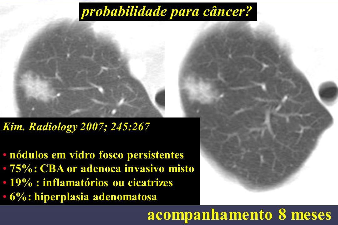 acompanhamento 8 meses probabilidade para câncer? Kim. Radiology 2007; 245:267 nódulos em vidro fosco persistentes 75%: CBA or adenoca invasivo misto