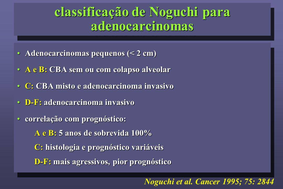 classificação de Noguchi para adenocarcinomas Adenocarcinomas pequenos (< 2 cm)Adenocarcinomas pequenos (< 2 cm) A e B: CBA sem ou com colapso alveolarA e B: CBA sem ou com colapso alveolar C: CBA misto e adenocarcinoma invasivoC: CBA misto e adenocarcinoma invasivo D-F: adenocarcinoma invasivoD-F: adenocarcinoma invasivo correlação com prognóstico:correlação com prognóstico: A e B: 5 anos de sobrevida 100% C: histologia e prognóstico variáveis D-F: mais agressivos, pior prognóstico Adenocarcinomas pequenos (< 2 cm)Adenocarcinomas pequenos (< 2 cm) A e B: CBA sem ou com colapso alveolarA e B: CBA sem ou com colapso alveolar C: CBA misto e adenocarcinoma invasivoC: CBA misto e adenocarcinoma invasivo D-F: adenocarcinoma invasivoD-F: adenocarcinoma invasivo correlação com prognóstico:correlação com prognóstico: A e B: 5 anos de sobrevida 100% C: histologia e prognóstico variáveis D-F: mais agressivos, pior prognóstico Noguchi et al.