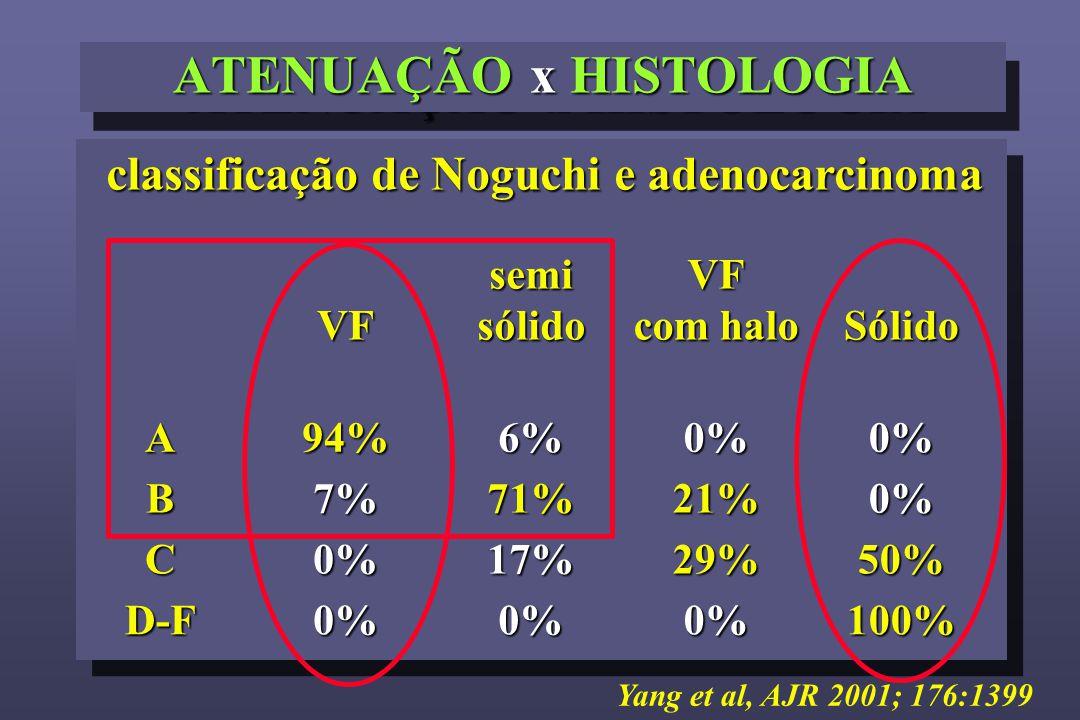 ATENUAÇÃO x HISTOLOGIA classificação de Noguchi e adenocarcinoma VFsemisólido VF com halo SólidoA94%6%0%0% B7%71%21%0% C0%17%29%50% D-F0%0%0%100% Yang et al, AJR 2001; 176:1399