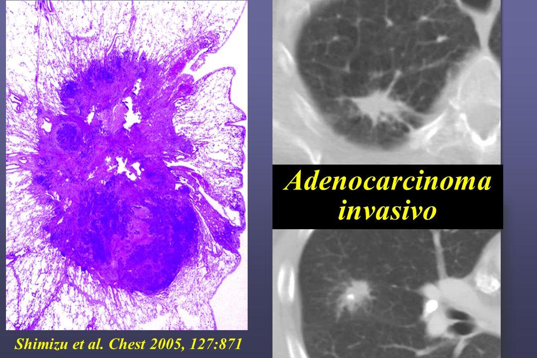 Shimizu et al. Chest 2005, 127:871 Adenocarcinoma invasivo