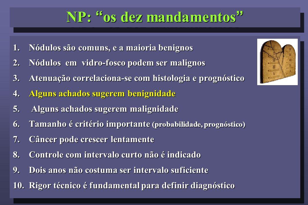 1.Nódulos são comuns, e a maioria benignos 2.