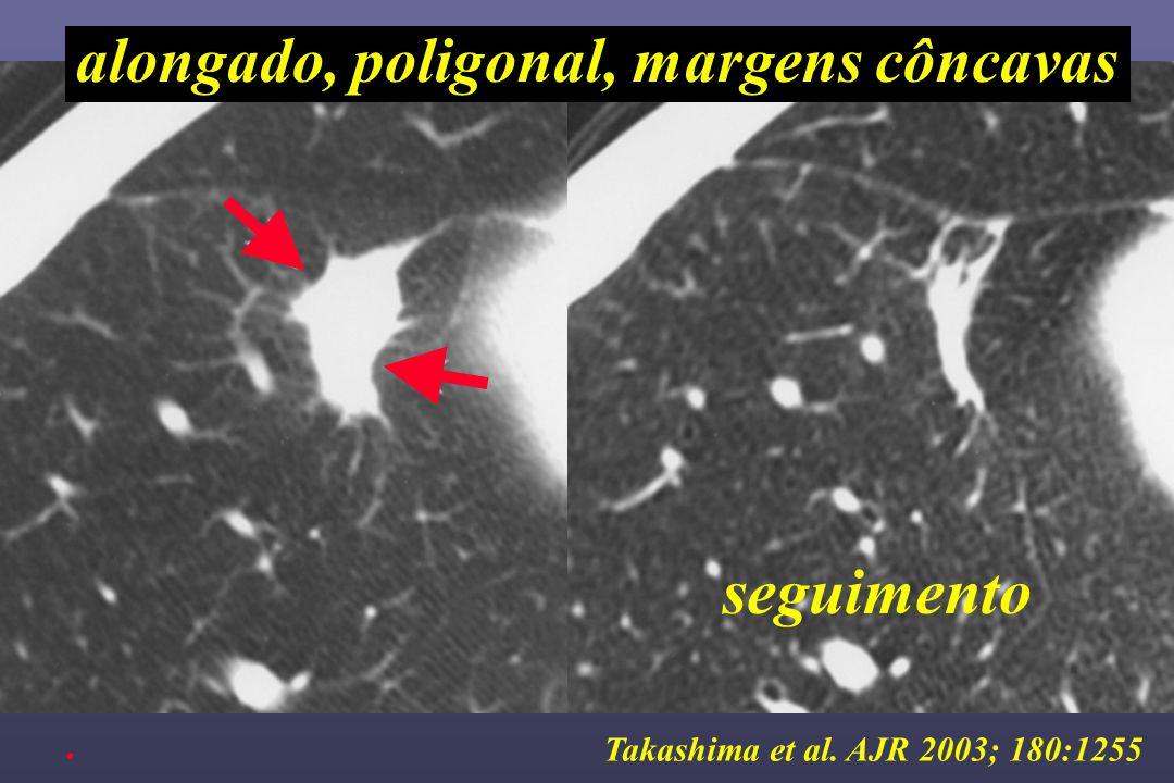 Takashima et al. AJR 2003; 180:1255 alongado, poligonal, margens côncavas seguimento.