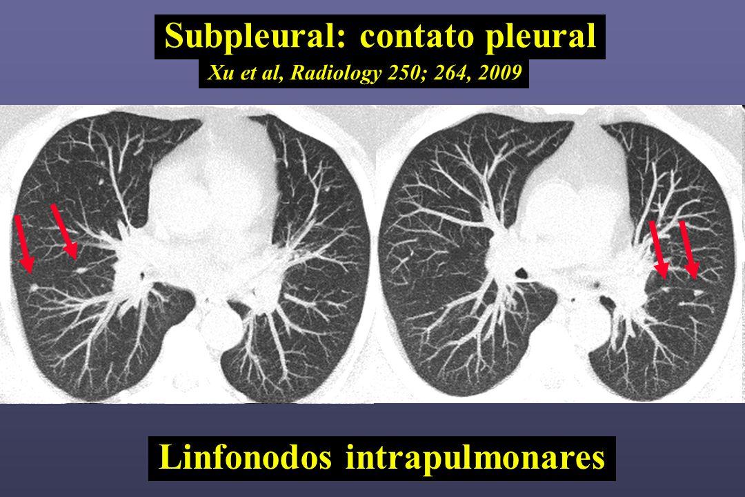 Subpleural: contato pleural Xu et al, Radiology 250; 264, 2009 Linfonodos intrapulmonares