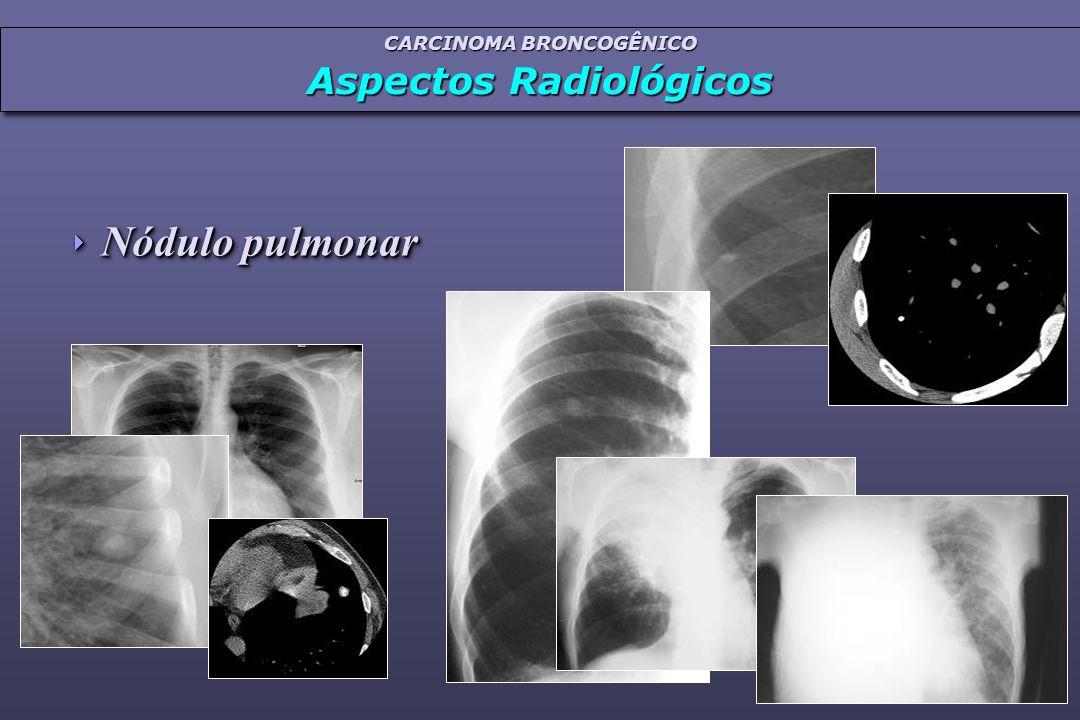  Nódulo pulmonar CARCINOMA BRONCOGÊNICO Aspectos Radiológicos CARCINOMA BRONCOGÊNICO Aspectos Radiológicos