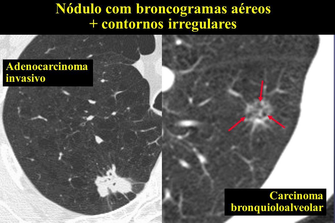 Nódulo com broncogramas aéreos + contornos irregulares Adenocarcinoma invasivo Carcinoma bronquioloalveolar