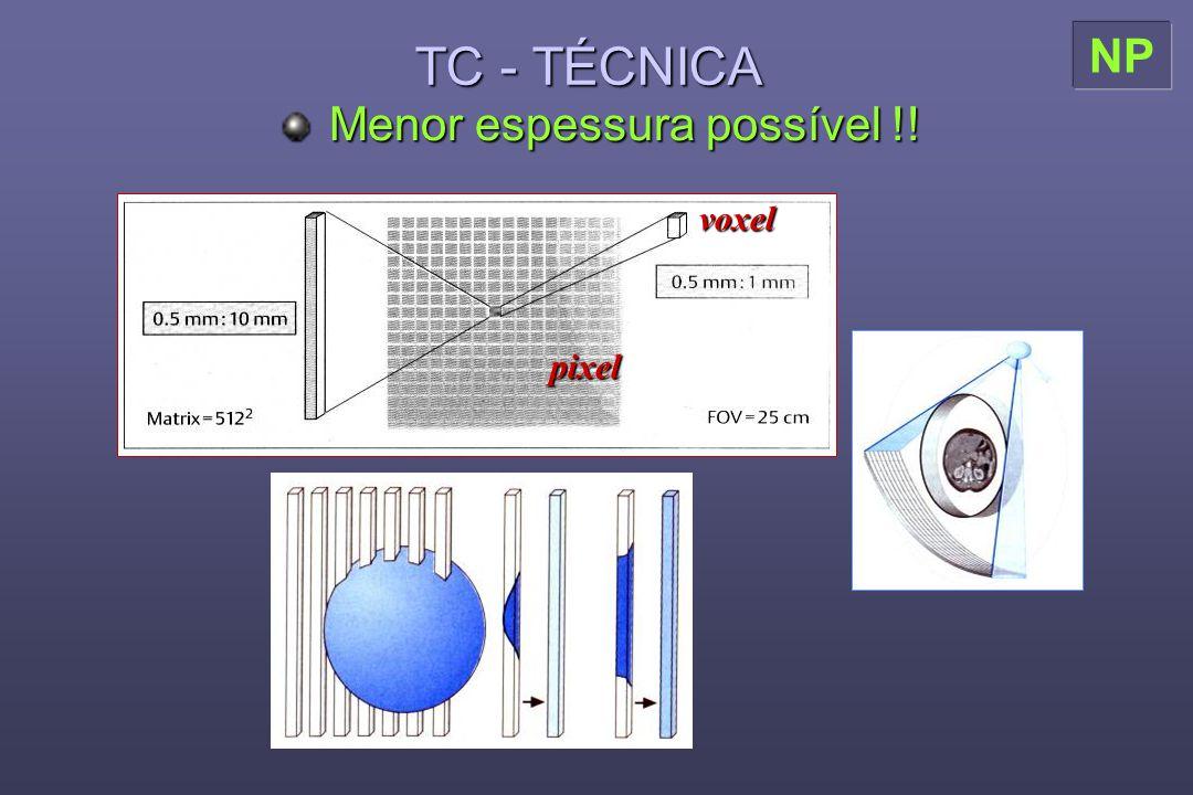 TC - TÉCNICA Menor espessura possível !! NP pixel voxel
