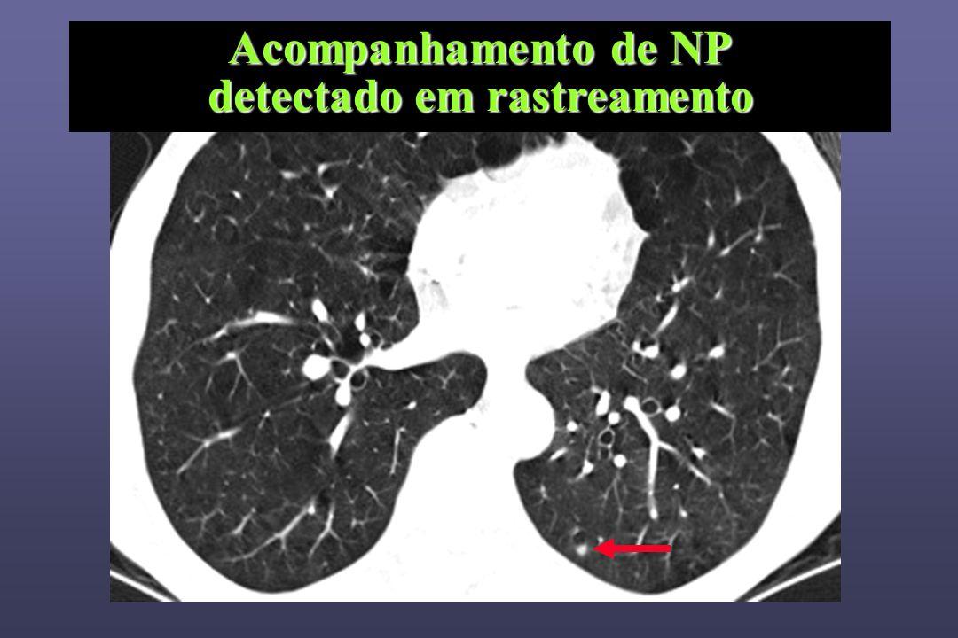 Acompanhamento de NP detectado em rastreamento