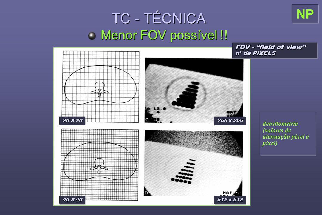 TC - TÉCNICA Menor FOV possível !.