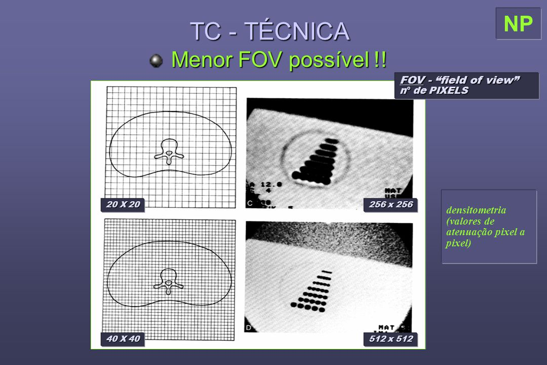 "TC - TÉCNICA Menor FOV possível !! FOV - ""field of view"" n° de PIXELS 20 X 20 40 X 40 256 x 256 512 x 512 densitometria (valores de atenuação pixel a"