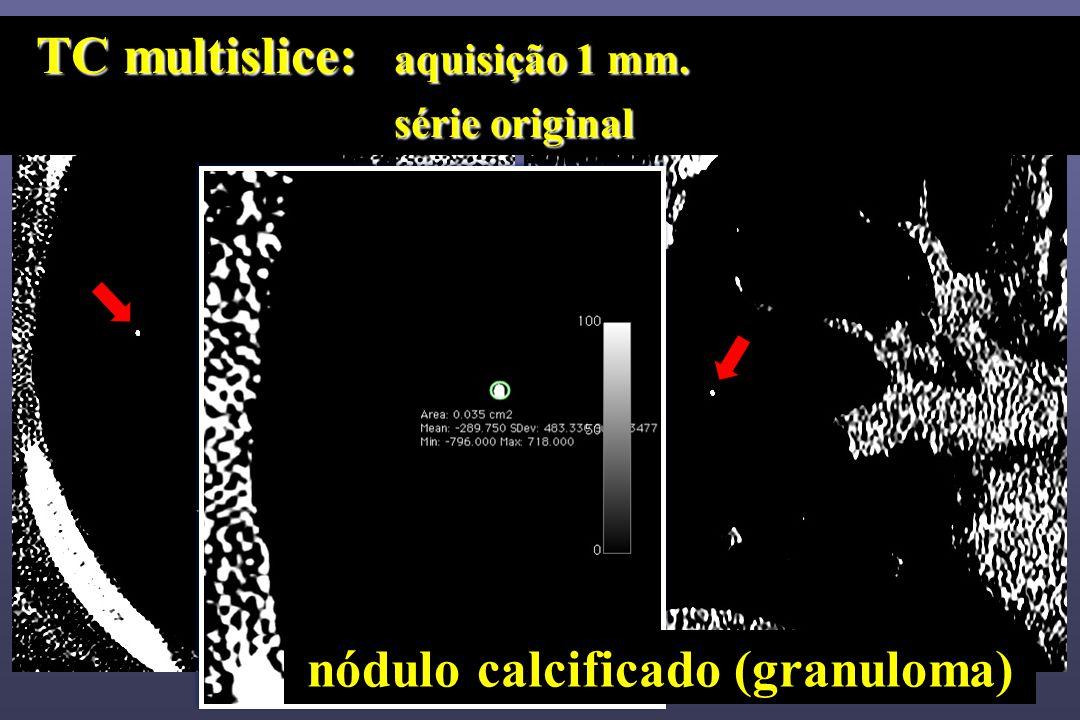 TC multislice: aquisição 1 mm. TC multislice: aquisição 1 mm. série original série original nódulo calcificado (granuloma)