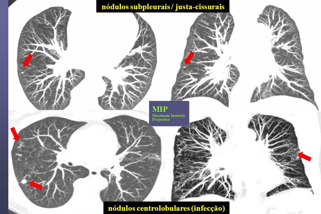 nódulos centrolobulares (infecção) nódulos subpleurais / justa-cissurais MIP Maximum Intensity Projection