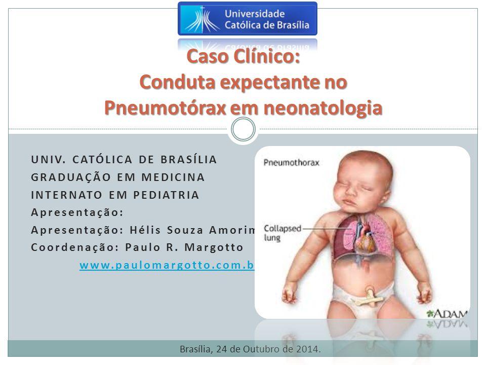 P NEUMOTÓRAX Complicações da Drenagem de Tórax:  Enfisema subcutâneo  Dor  Sangramento no local  Tamponamento cardíaco  Quilotórax  Hemotórax  Paralisia diafragmática  Perfuração pulmonar  Deformação da mama Pneumotórax em prematuros.