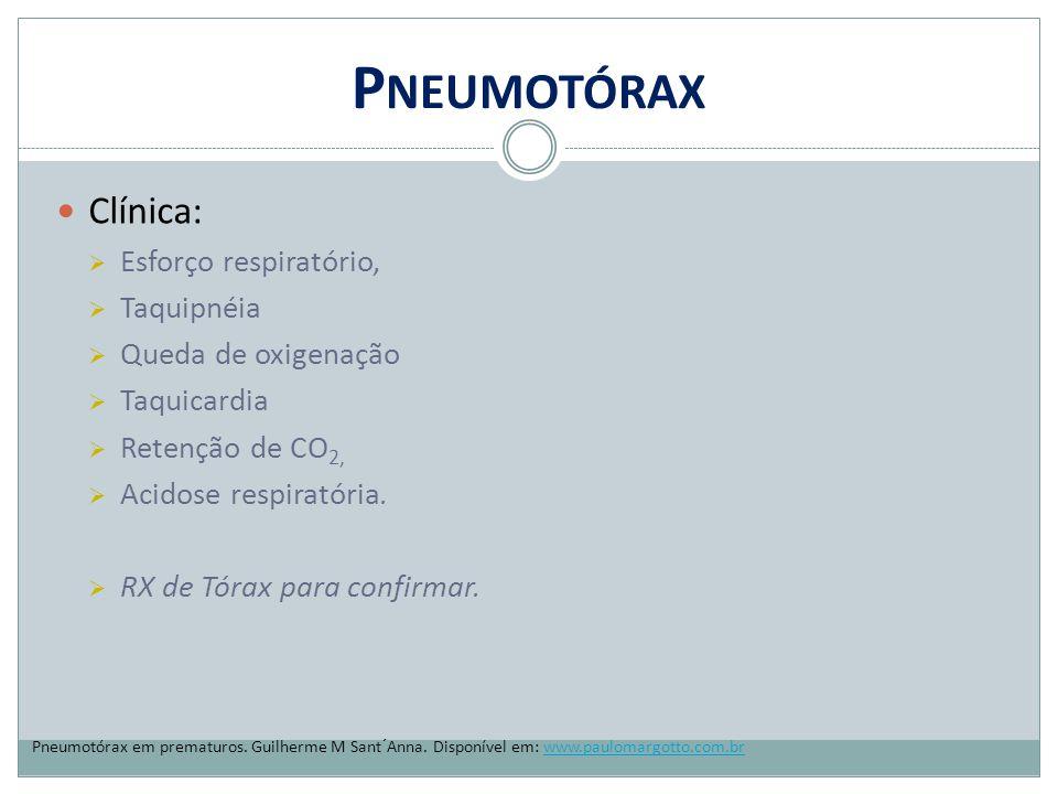 P NEUMOTÓRAX Clínica:  Esforço respiratório,  Taquipnéia  Queda de oxigenação  Taquicardia  Retenção de CO 2,  Acidose respiratória.  RX de Tór