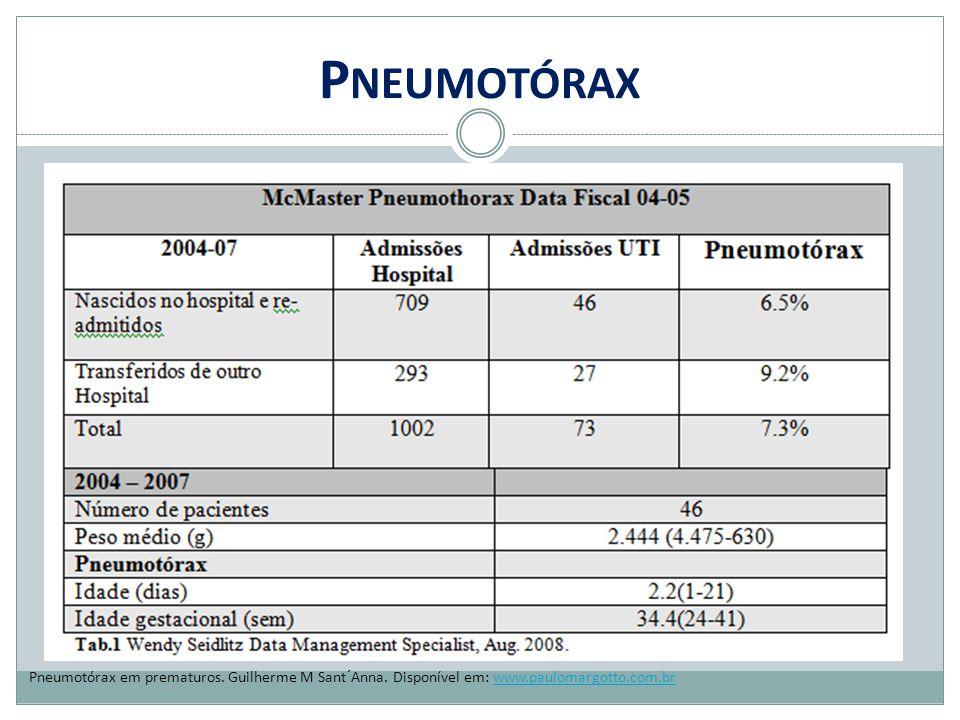 P NEUMOTÓRAX Pneumotórax em prematuros. Guilherme M Sant´Anna. Disponível em: www.paulomargotto.com.brwww.paulomargotto.com.br