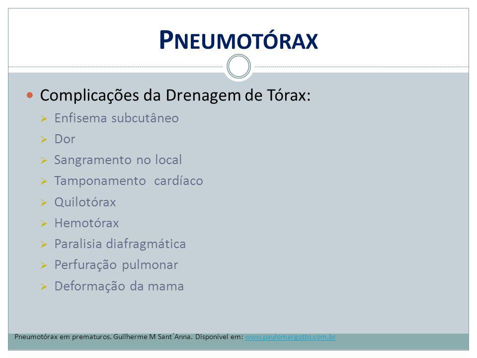 P NEUMOTÓRAX Complicações da Drenagem de Tórax:  Enfisema subcutâneo  Dor  Sangramento no local  Tamponamento cardíaco  Quilotórax  Hemotórax 