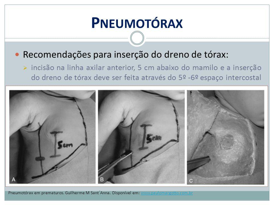P NEUMOTÓRAX Recomendações para inserção do dreno de tórax:  incisão na linha axilar anterior, 5 cm abaixo do mamilo e a inserção do dreno de tórax d
