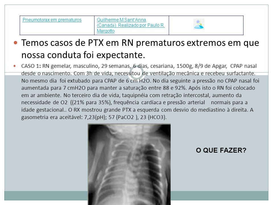 Temos casos de PTX em RN prematuros extremos em que nossa conduta foi expectante. CASO 1: RN gemelar, masculino, 29 semanas, 6 dias, cesariana, 1500g,