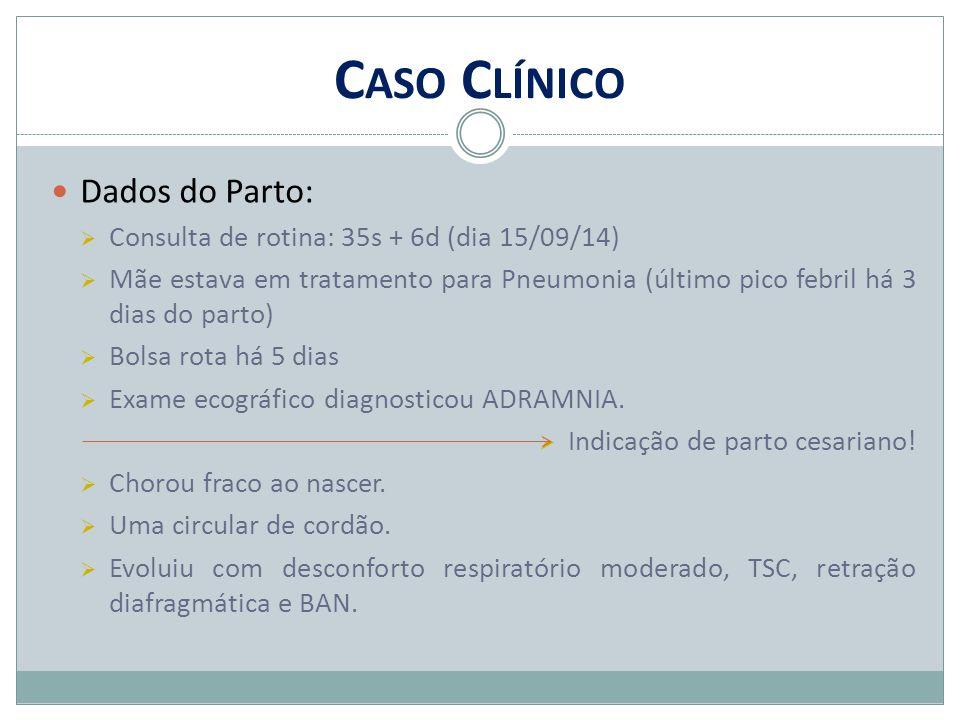 C ASO C LÍNICO Dados do Parto:  Consulta de rotina: 35s + 6d (dia 15/09/14)  Mãe estava em tratamento para Pneumonia (último pico febril há 3 dias d