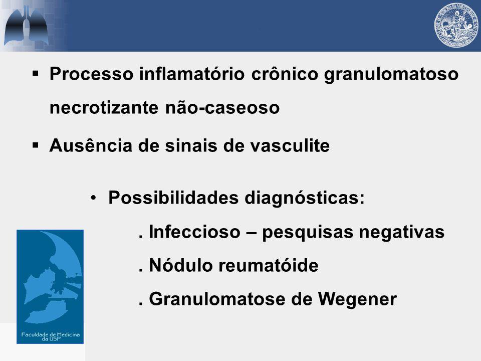  Processo inflamatório crônico granulomatoso necrotizante não-caseoso  Ausência de sinais de vasculite Possibilidades diagnósticas:.