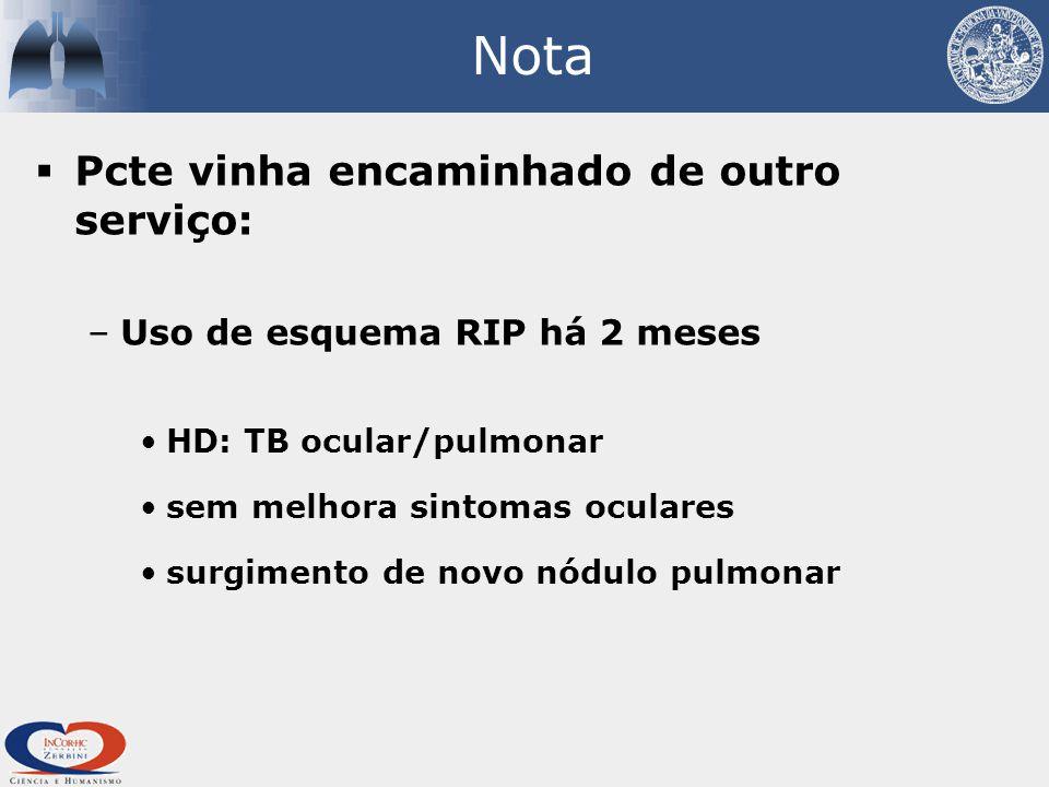 Nota  Pcte vinha encaminhado de outro serviço: –Uso de esquema RIP há 2 meses HD: TB ocular/pulmonar sem melhora sintomas oculares surgimento de novo nódulo pulmonar