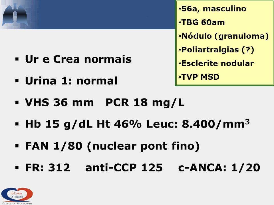  Ur e Crea normais  Urina 1: normal  VHS 36 mm PCR 18 mg/L  Hb 15 g/dL Ht 46% Leuc: 8.400/mm 3  FAN 1/80 (nuclear pont fino)  FR: 312 anti-CCP 125 c-ANCA: 1/20 56a, masculino TBG 60am Nódulo (granuloma) Poliartralgias (?) Esclerite nodular TVP MSD