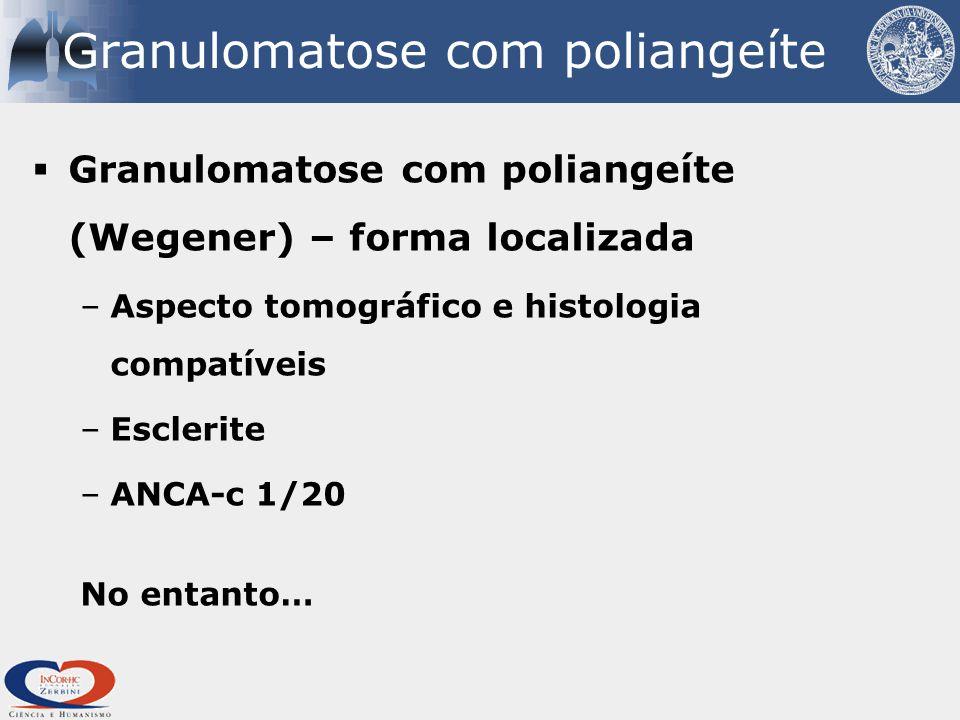 Granulomatose com poliangeíte  Granulomatose com poliangeíte (Wegener) – forma localizada –Aspecto tomográfico e histologia compatíveis –Esclerite –ANCA-c 1/20 No entanto…