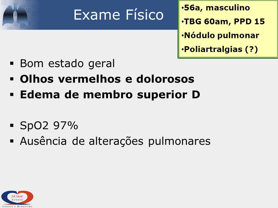 Exame Físico  Bom estado geral  Olhos vermelhos e dolorosos  Edema de membro superior D  SpO2 97%  Ausência de alterações pulmonares 56a, masculino TBG 60am, PPD 15 Nódulo pulmonar Poliartralgias (?)